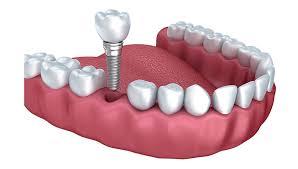 Dental Implants CA
